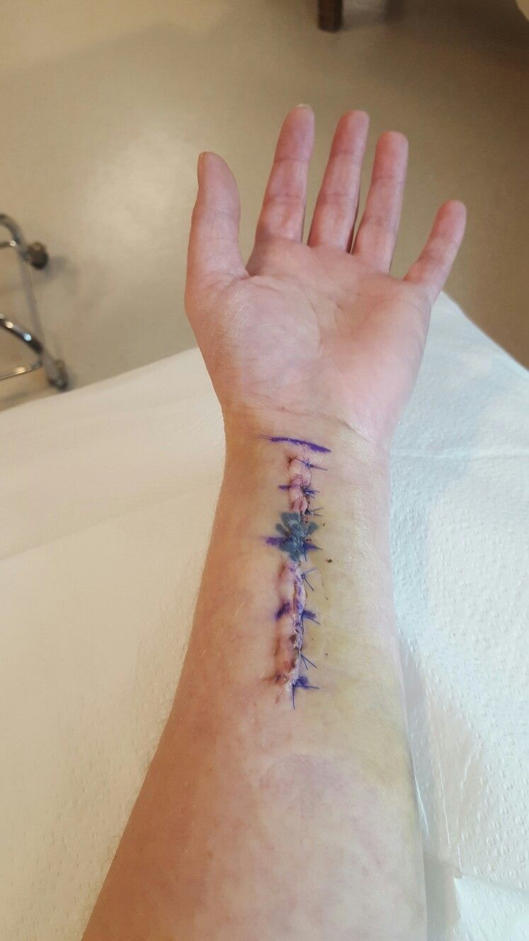 post tattoo removal pain