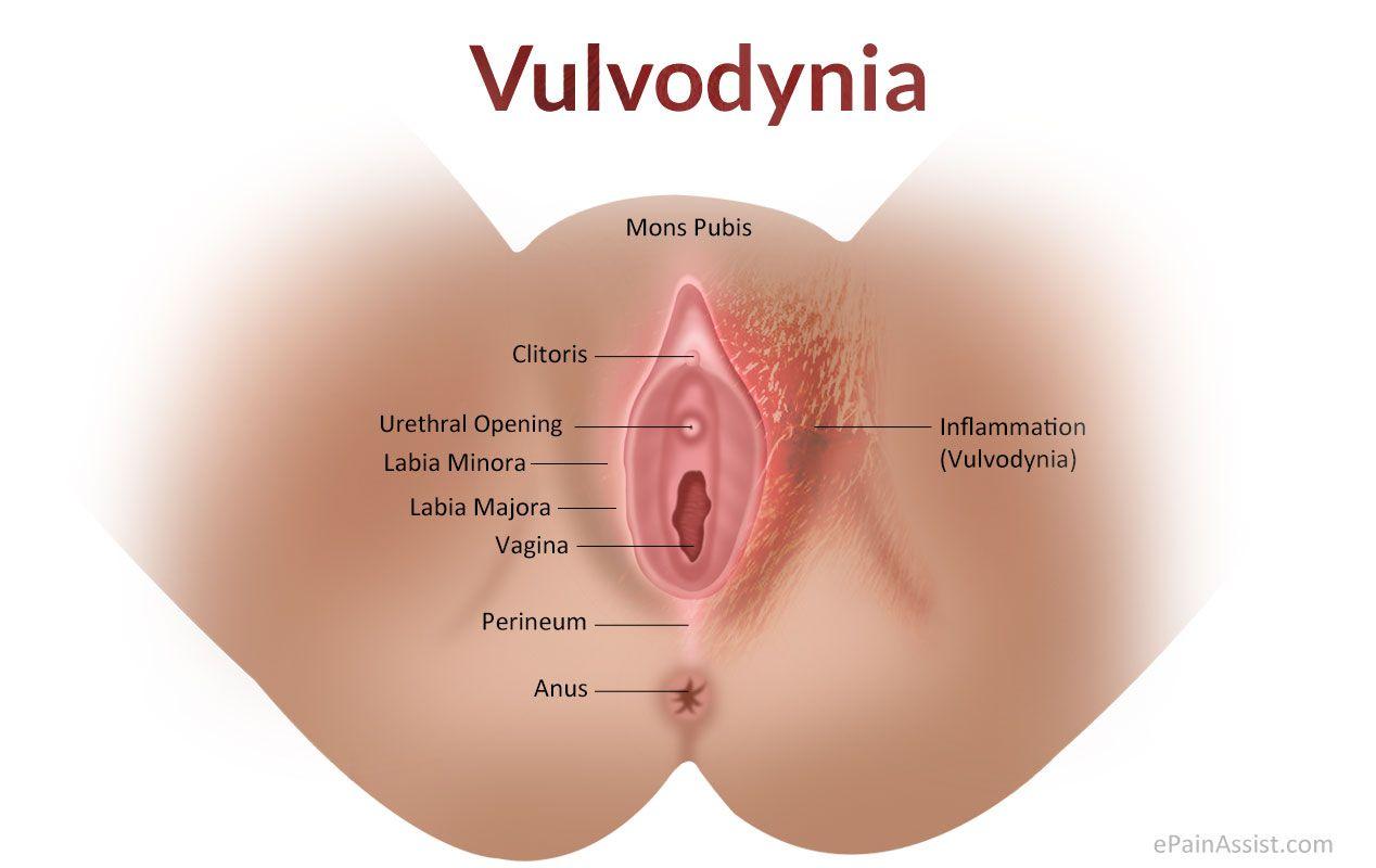 Vulvodynia  Money  Skin care remedies Dry Skin Love