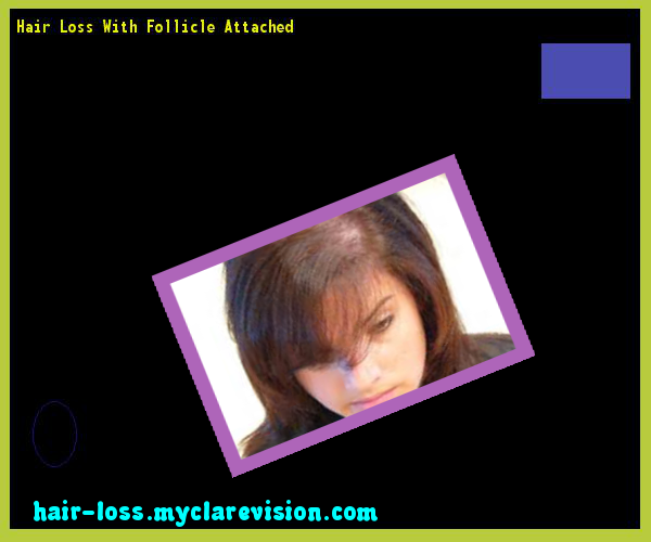 Hair Loss With Follicle Attached 111059 - Hair Loss Cure!