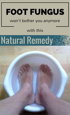 Foot Fungus Won\'t Bother You Anymore With This Natural Remedy ...