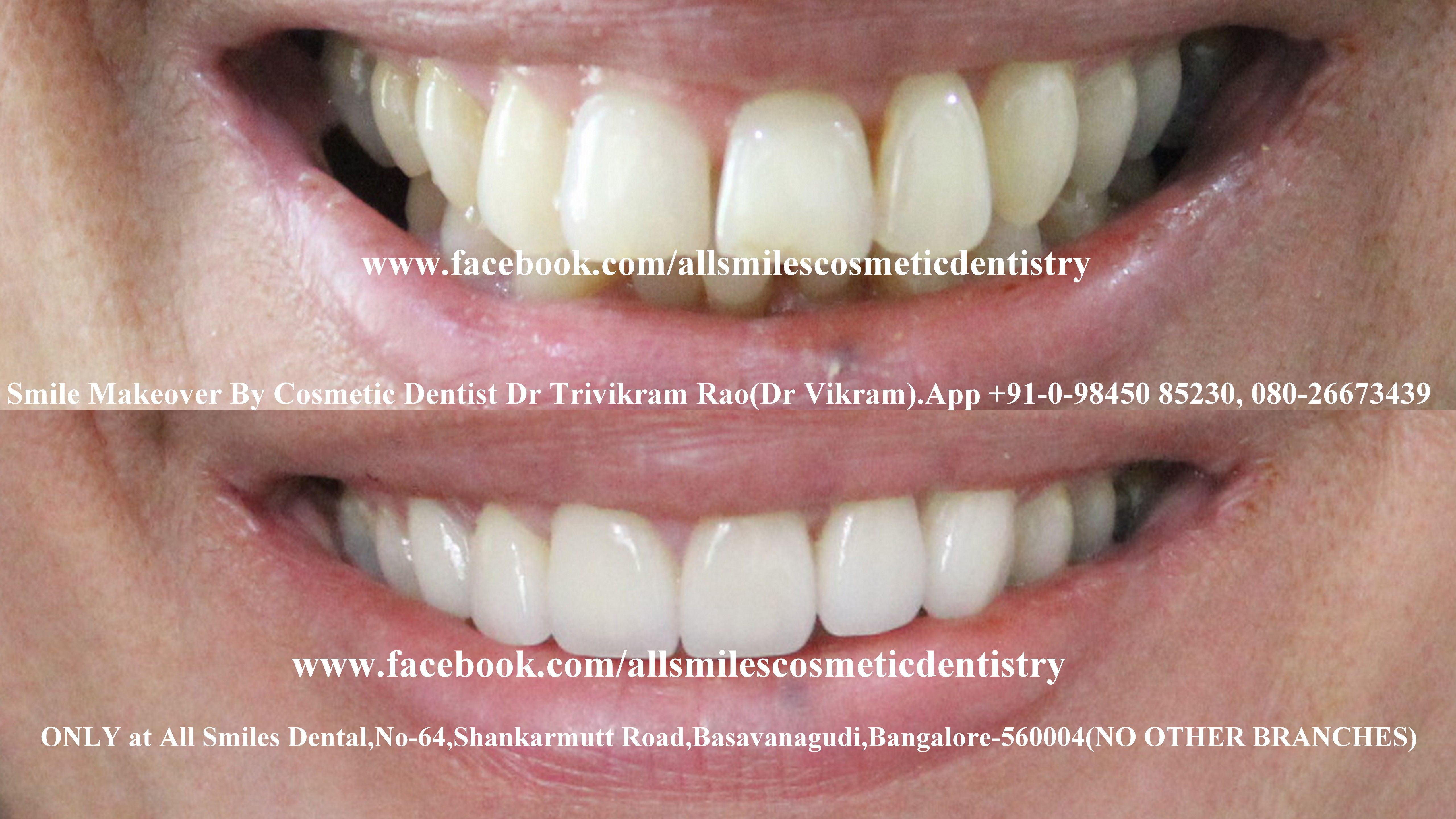 Smile makeovers by expert cosmetic dentist Dr Trivikram in