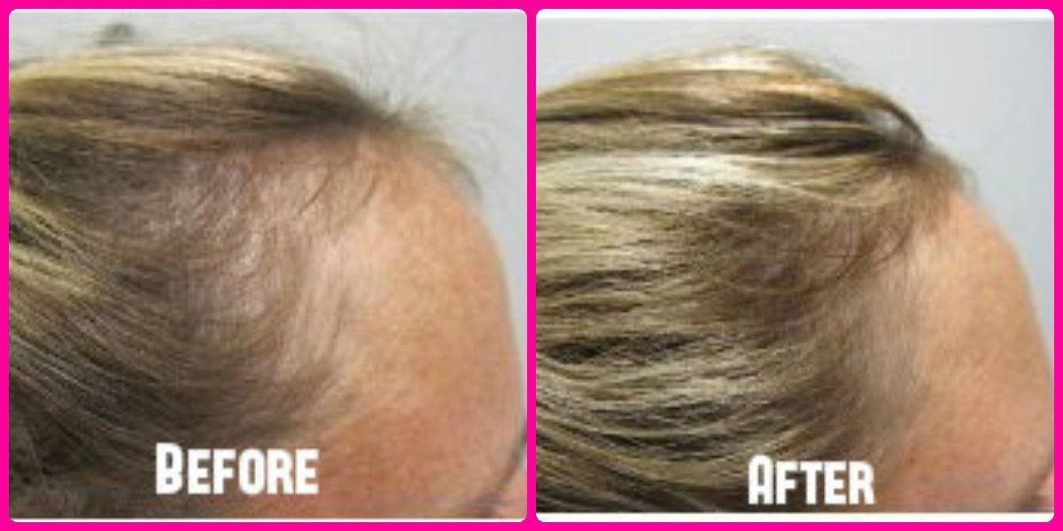 Vitamins Hair Loss, List Of Vitamins To Regrow Hair Fast