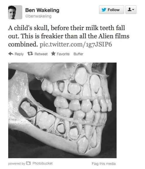 Still With Us Ever Think About How Your Teeth Looked In Your