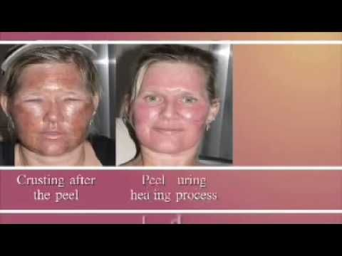 Harmful facial peel