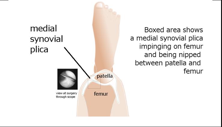 www.health-gossip.com Synovial plicas are embriyological reminance ...