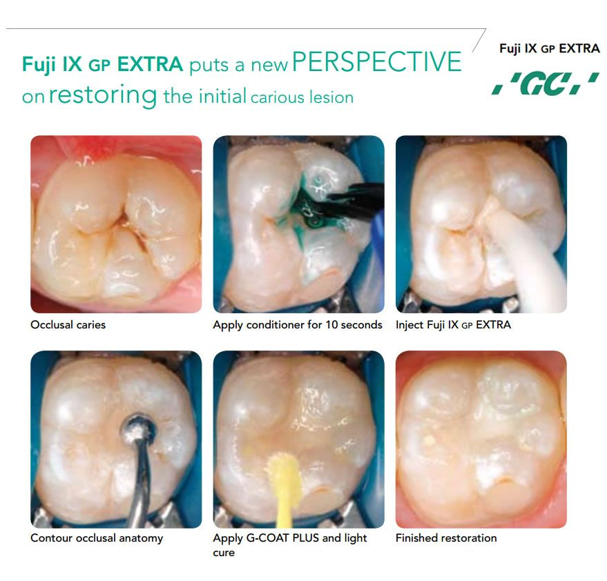 Exelent Tooth Occlusal Anatomy Image Collection - Human Anatomy ...