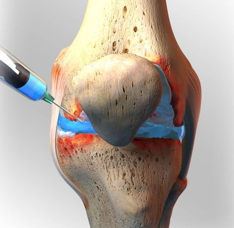 What S The Right Injection For My Joints Knee