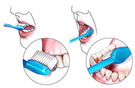 الطريقة الصحيحة لتنظيف الأسنان Dental Oral Hygiene Dental Implants Cost