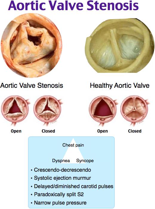 Aortic Valve Stenosis Nursing Pinterest Medical School