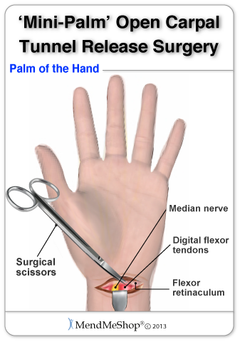 Mini Palm Or Mini Open Carpal Tunnel Repair From Www Aidmycts Com