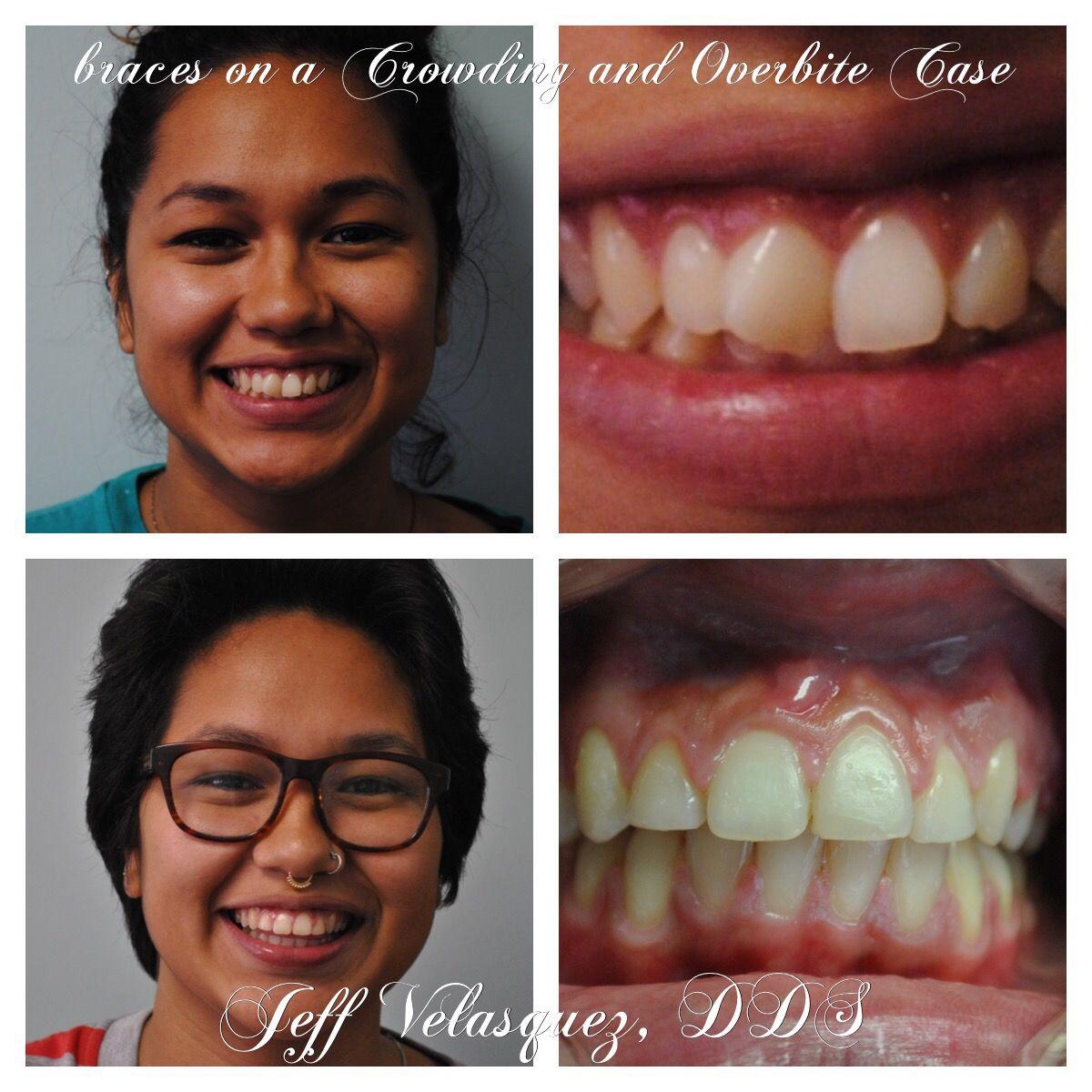 Carmina's Ortho Case, Dental braces or teeth braces for