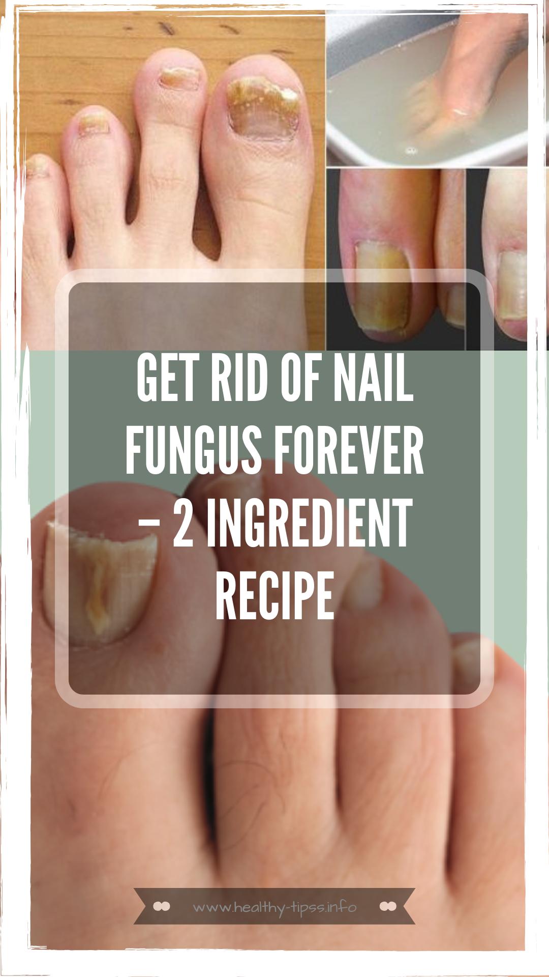 Get Rid of Nail Fungus Forever – 2 Ingredient Recipe | Herbal ...