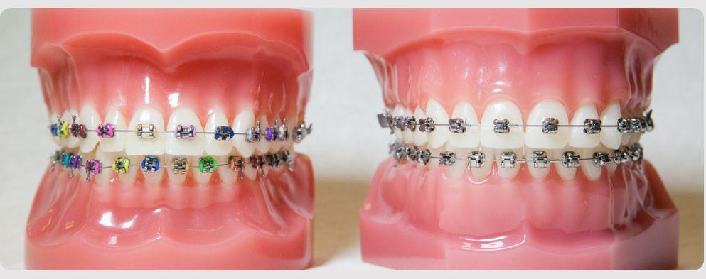 Ortodontia Aparelho Dental Odontocenters Estetica Sorriso Port