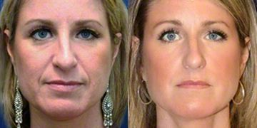 Juvederm Before & After Pictures - RealSelf   JUVEDERM
