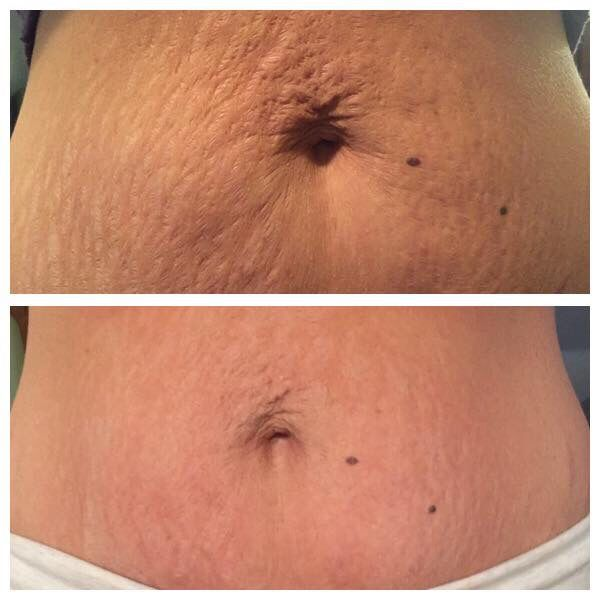 Instantly ageless on the stomach!!! http://beyoungerbebeautiful.jeunesseglobal2.com/products.aspx?p=INSTANTLY_AGELESS
