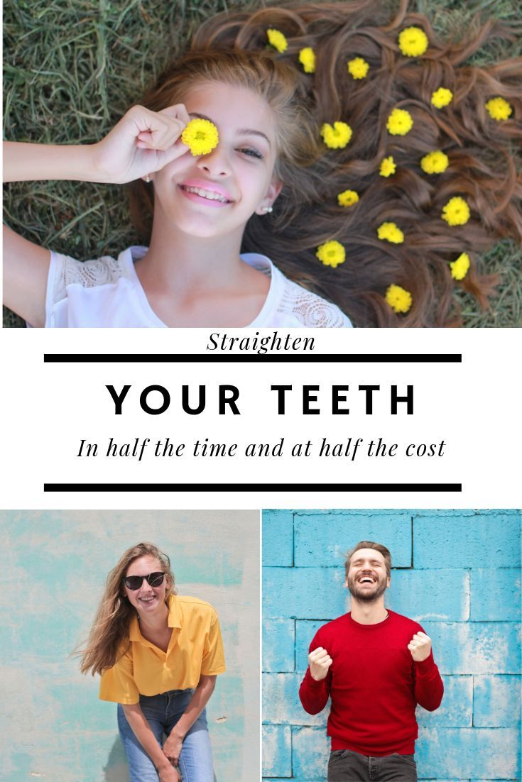 Straighten your teeth straighten teeth Teeth
