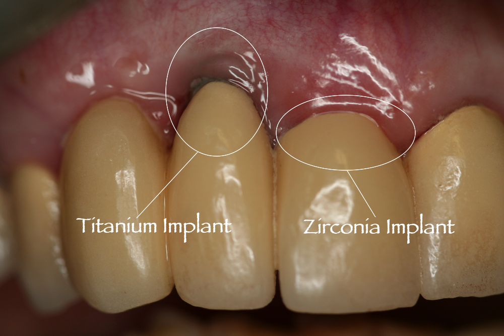 Metal Free Dental Implants In Maryland Are White Implants Better Than Metal Implants Free Dental Implants Implant Dentist Dental Implants