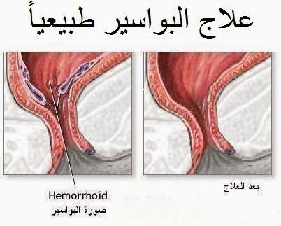 علاج البواسير طبيعيا بدون تدخل جراحي Cure For Hemorrhoids Hemorrhoids Home Remedies For Hemorrhoids