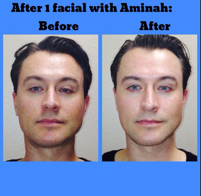 af25a89eec7 99% of our clients see improvement after one Organic Hungarian Facial. Look  closely.