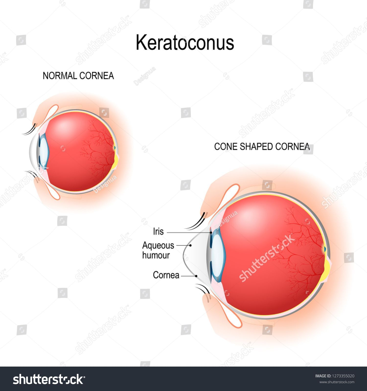 Keratoconus. Normal cornea and cone shaped cornea. Anatomy ... on cross section of the eye, flowchart of the eye, schematic eye retinoscopy, sagittal section of the eye, schematic section of the human eye, cutaway view of the eye, midsagittal section of the eye, transverse section of the eye, cross section diagram of eye,