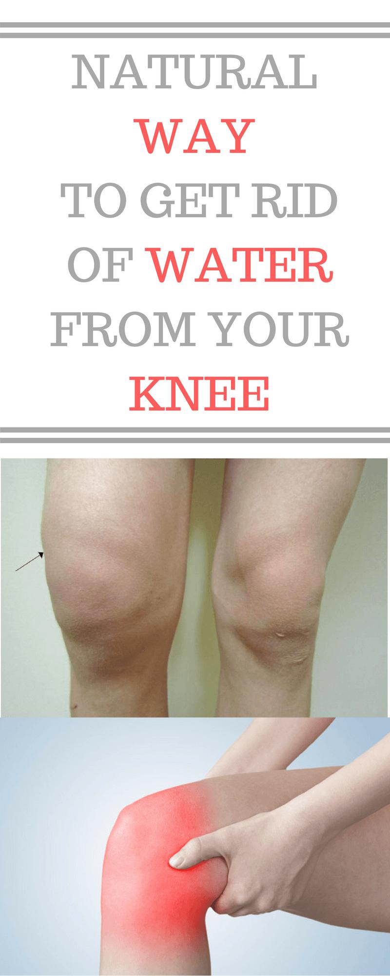 99ba3063ca466e3b764187f7212f41e1 - How To Get Rid Of Swelling And Fluid In Knee