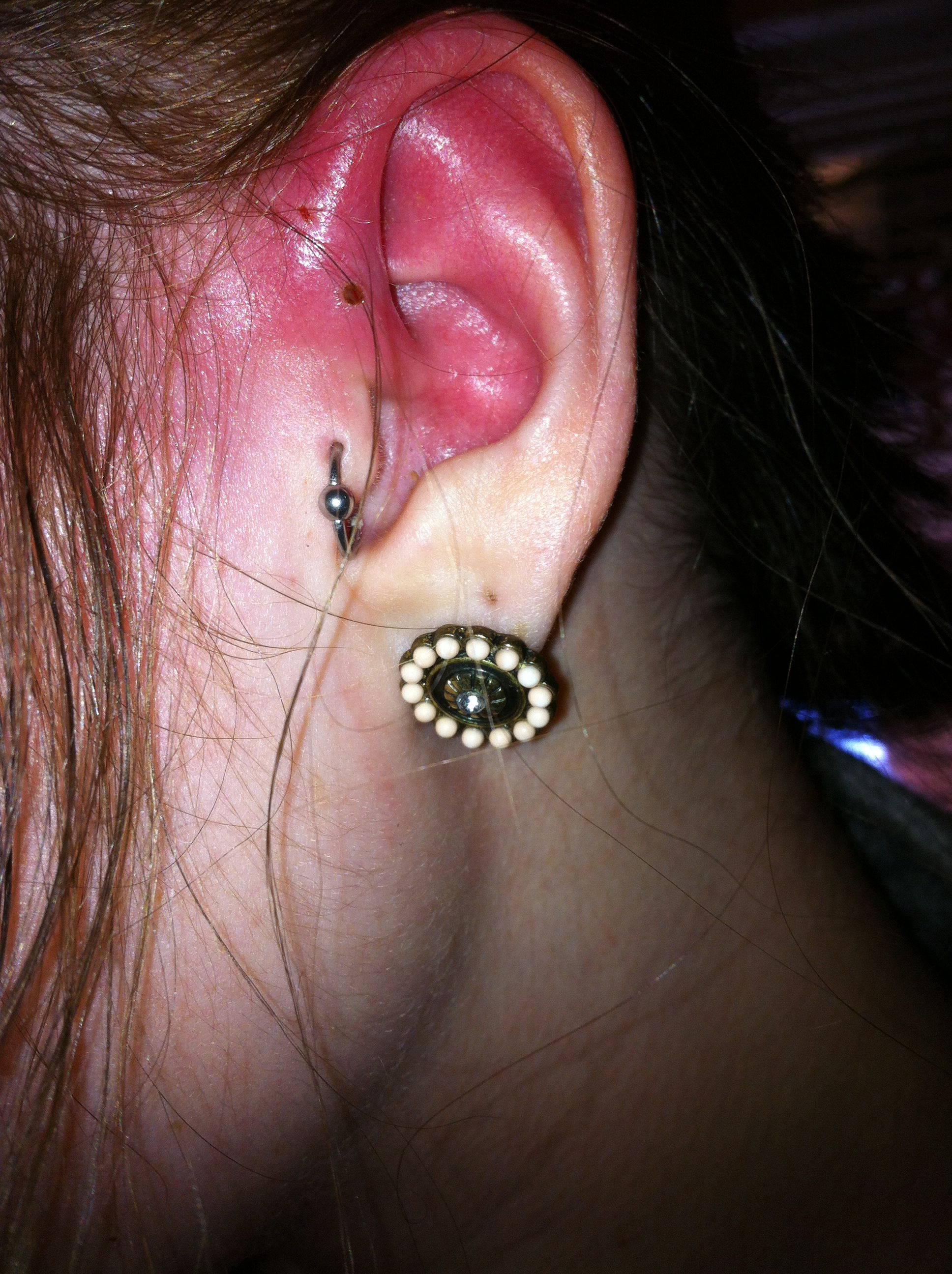 Infected Cartilage Piercing Piercing