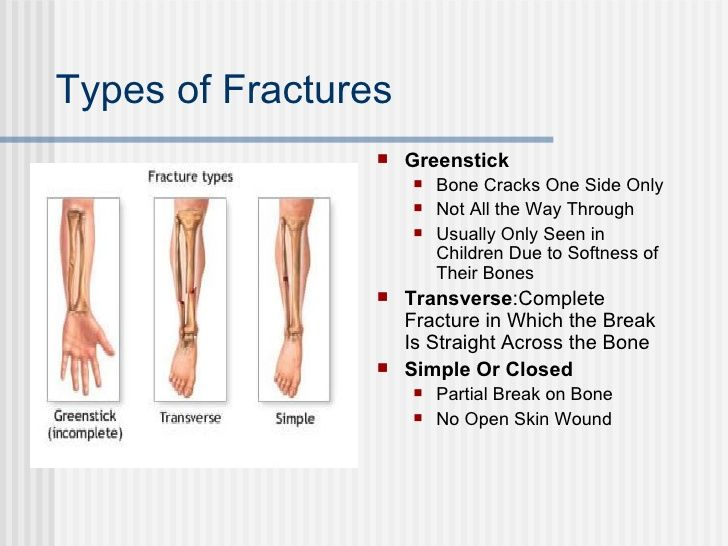 four types of fractures pictures - Google Search | fitness and ...