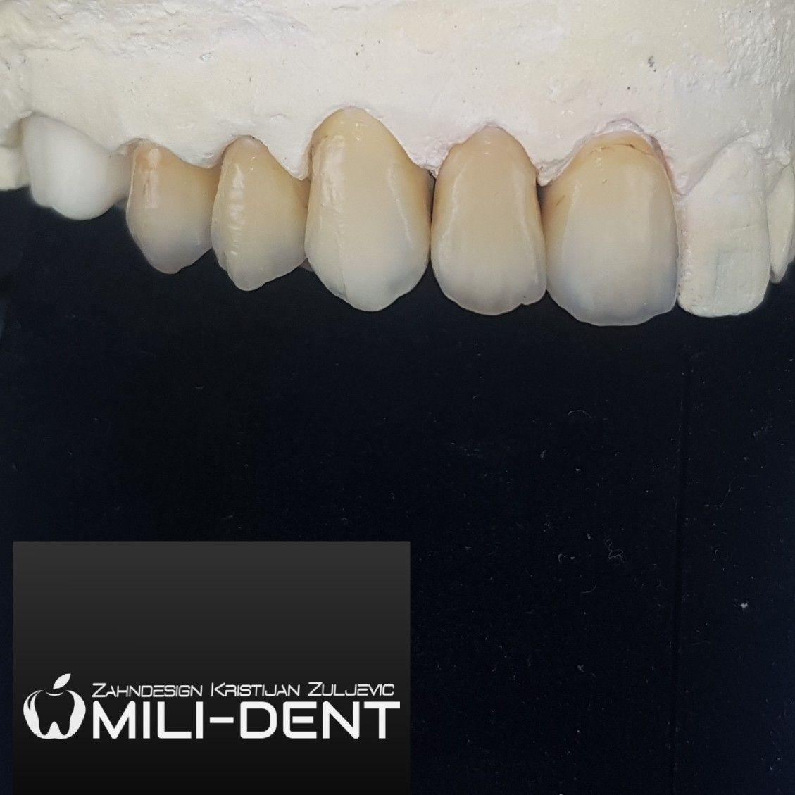 Pin By Gergely Visnyei On Zahndesign Mili Dent Dental Vienna Dental Dentistry Dental Ceramics