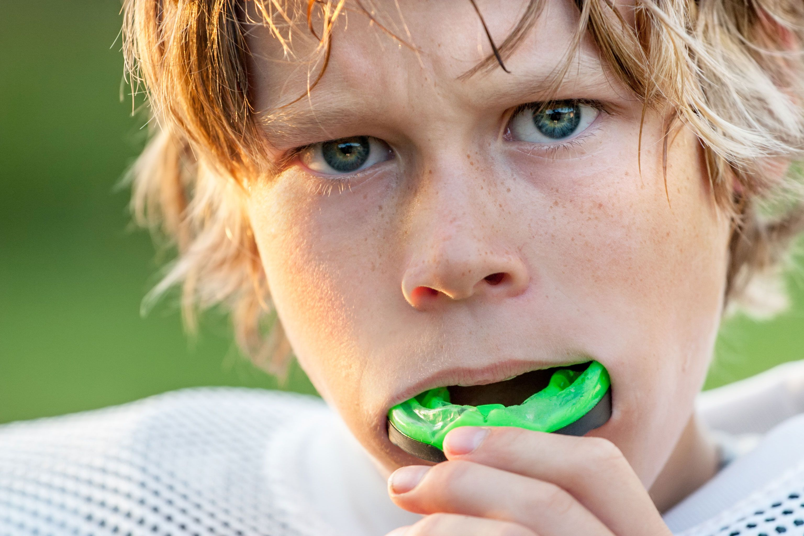 Athletic dental mouth guards at affordable price Delhi