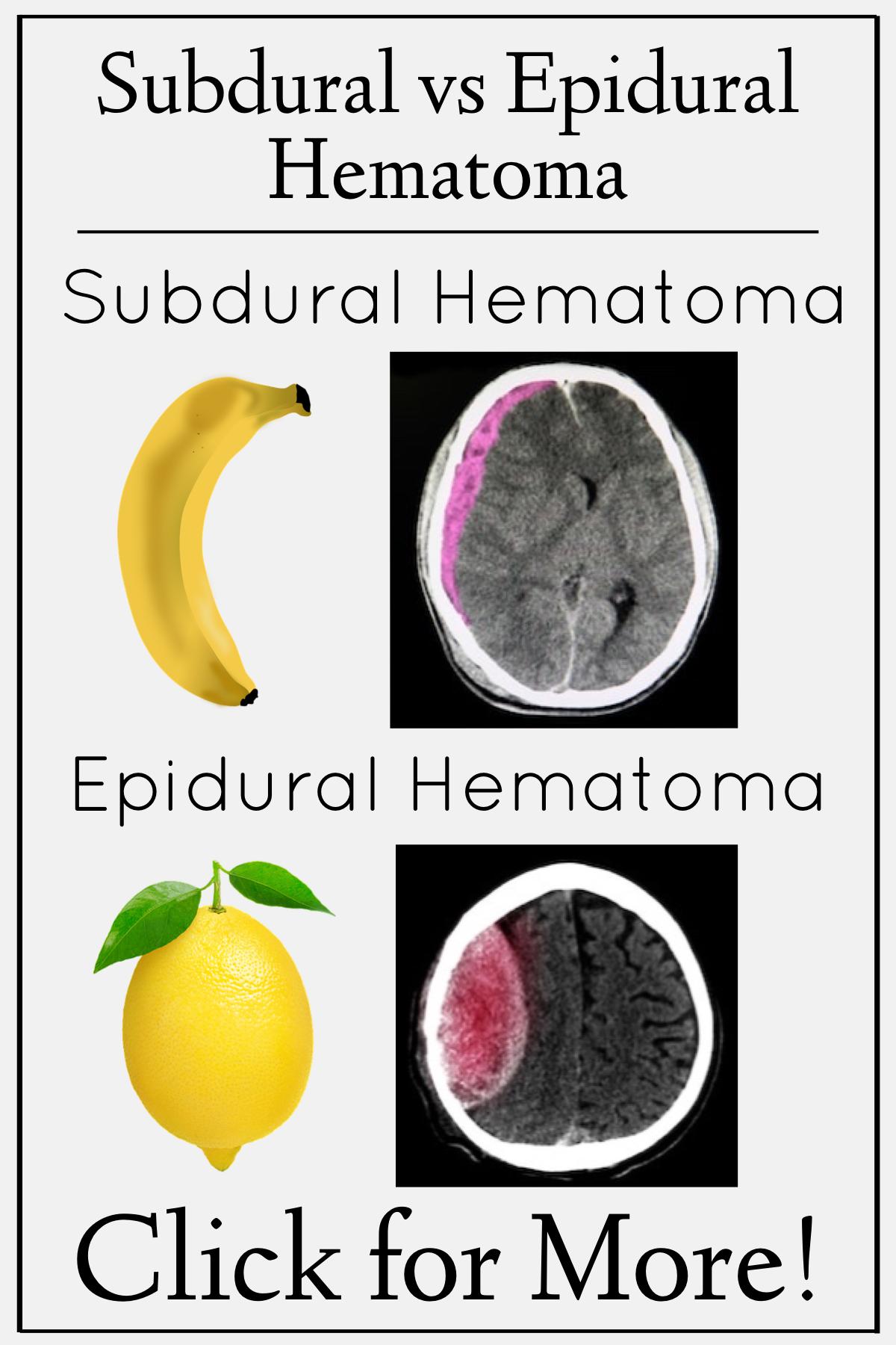 Hematoma vs epidural subdural hematoma The Difference