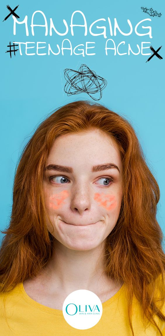 Causes Of Acne In Teenagers Teenage acne, Acne, Acne causes