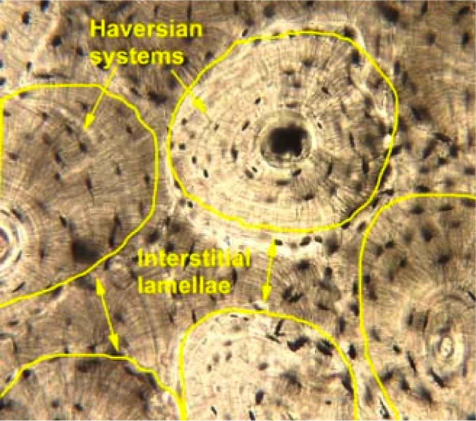 Interstitial Lamellae Compact Bone Histology Cartilage And