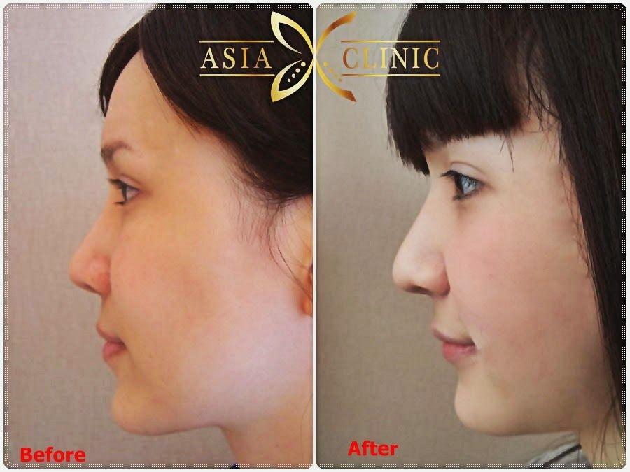 Before and After Photo RHINOPLASTY Rhinoplasty, Plastic