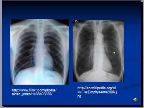 COPD and Emphysema interp XRAY from smoking damage   Respiratory ...