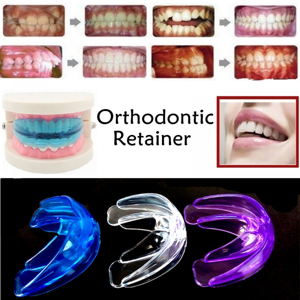 Adult and child dental oral mouth orthodontic appliance