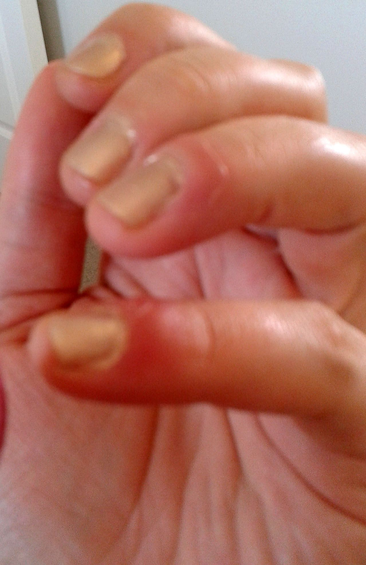 Finger Nail Infection ~ Remedies for skin | Skin care | Pinterest ...