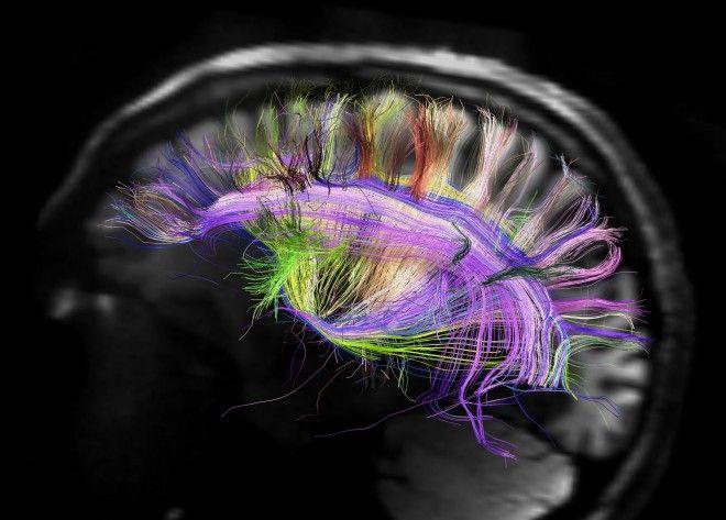 Rainbow Brain Map Reveals Grid Like Pattern Brain Images Brain Mapping Nerve Fiber