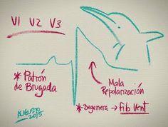 Aprende a interpretar un Electrocardiograma de una manera fácil con esta colección de imágenes