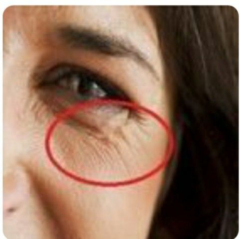 Photo of Natural care for wrinkles around the eyes – Eye care
