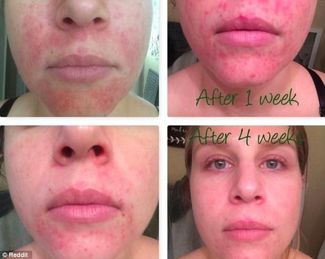 Woman Claims That Raw Honey Cleared Her Acne Raw Honey Mask Rash On Face Scaley Skin