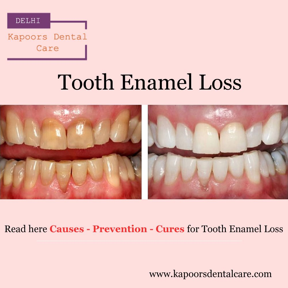 Tooth Enamel Loss at a Young Age Tooth Enamel Loss at a Young Age new pictures