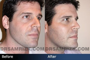 Before and after photo of a 35 year old male patient who had stem cell fat