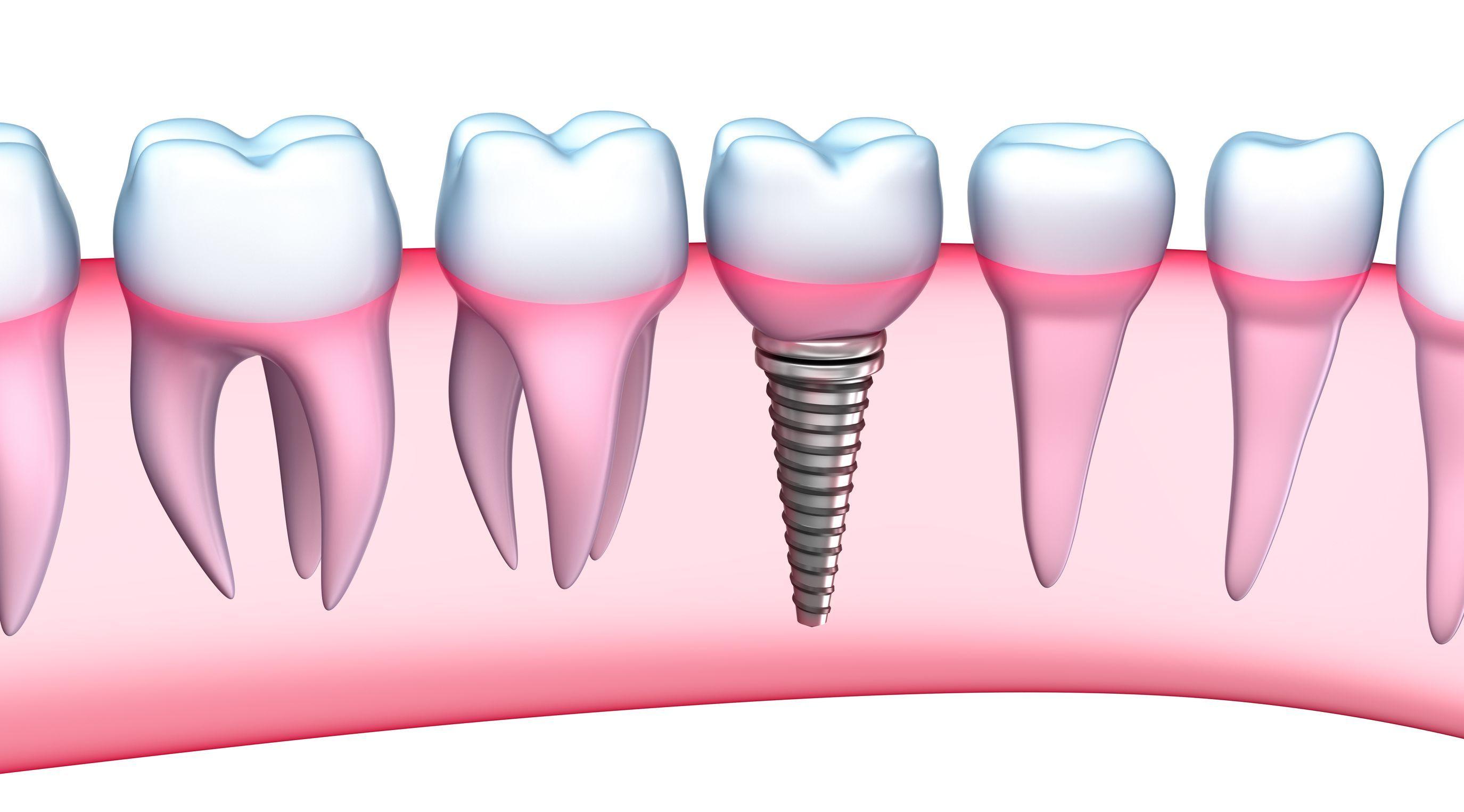 Resultado de imagen de implantes dentales