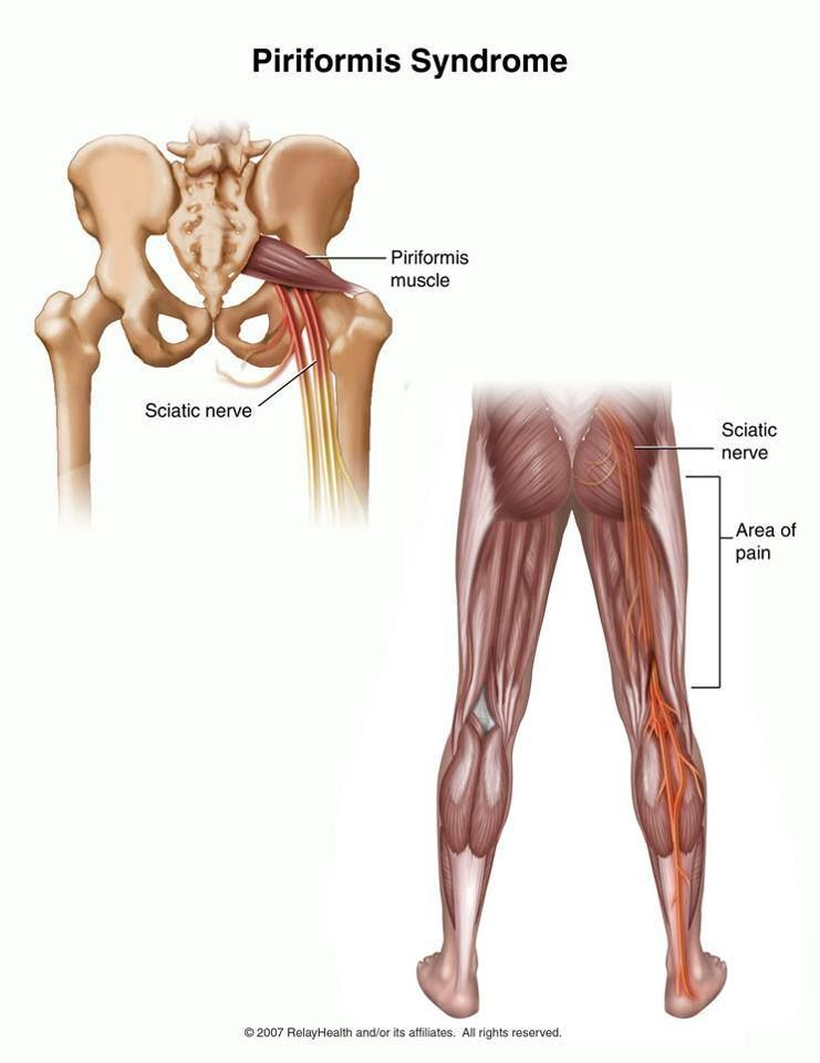 Piriformis Syndrome... Damn that\'s what my problem is ! | Anatomía ...