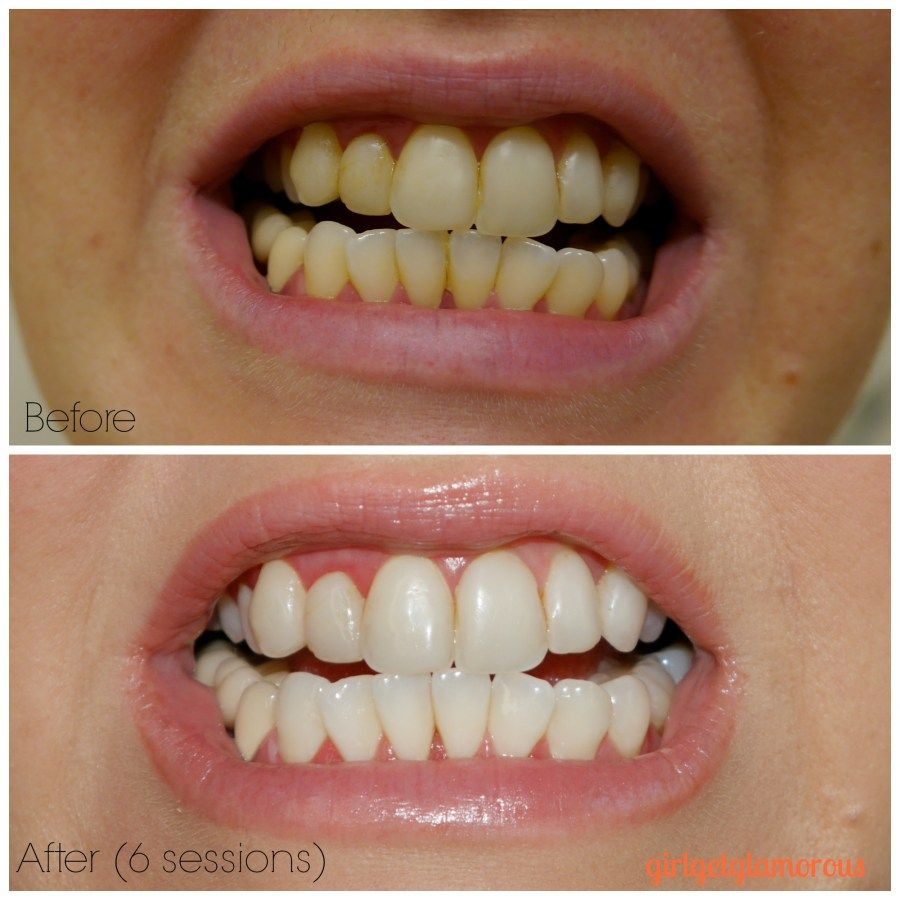 Pin On Best Teeth Whitening Reviews