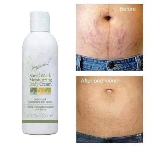 Tiger Marks On Your Tummy Use The Stretch Mark And Scar Cream To