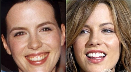 Can Botox Fix Your Gummy Smile?   The Sirin Scoop   Dental