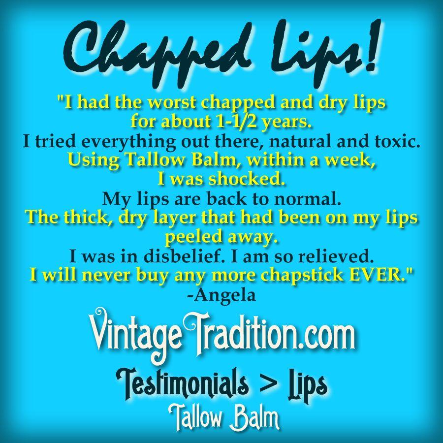 Chapped Lips #chapped #chappedlips #lipbalm
