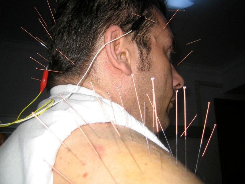 E-Stim Acupuncture for a stroke rehab patient | Medicine | Pinterest
