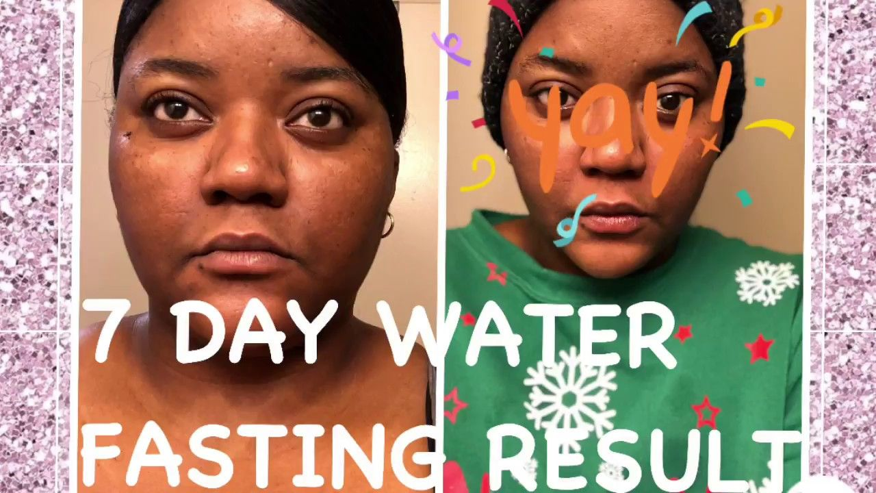 Pin By Sashie K On 21 Day Water Fast Results Water Fasting